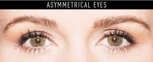 1433230359 asymmetrical eyes