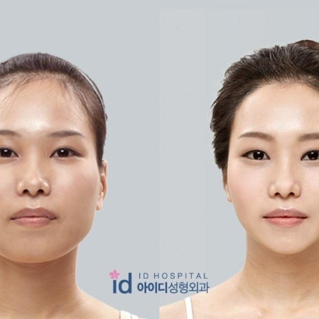 เรื่องต้องรู้ก่อนทำศัลยกรรมจมูกแบบสาวเกาหลี