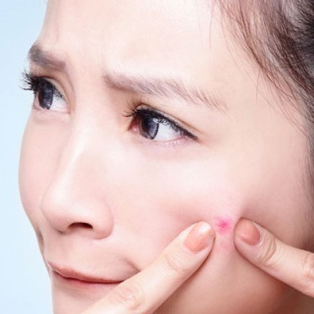 1431319892 top 5 natural beauty tips for pimples and acne skin